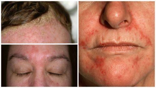 Que sirve para la dermatitis seborreica en el cuero cabelludo
